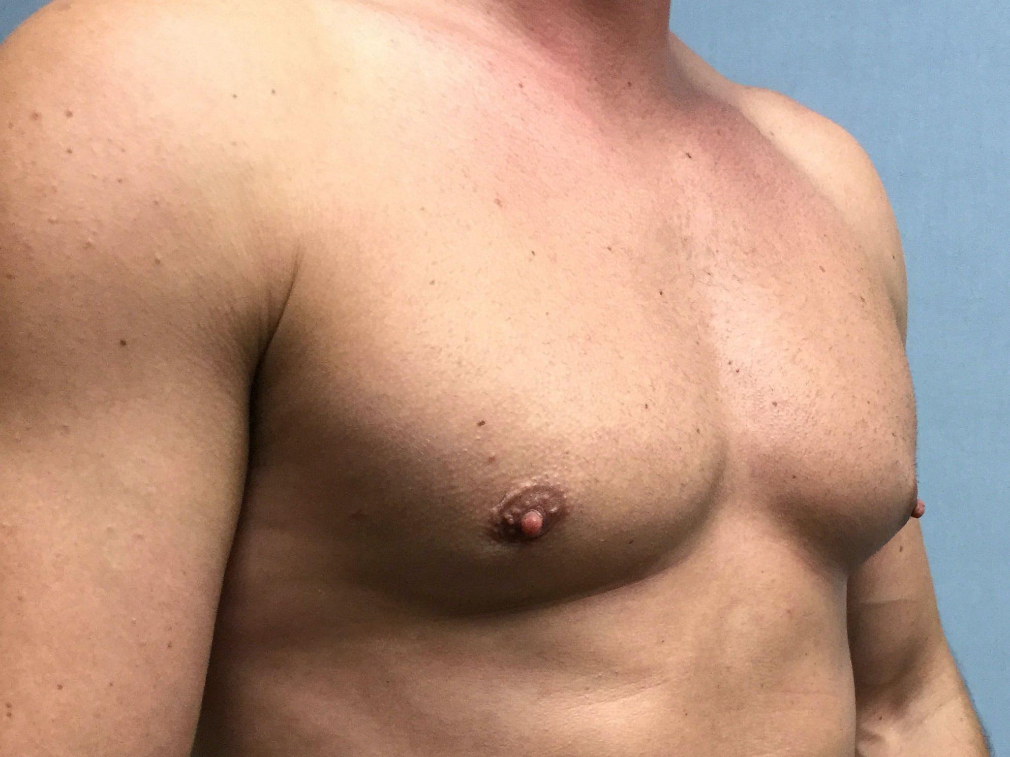 Gynecomastia Gallery - Patient 60810585 - Image 4