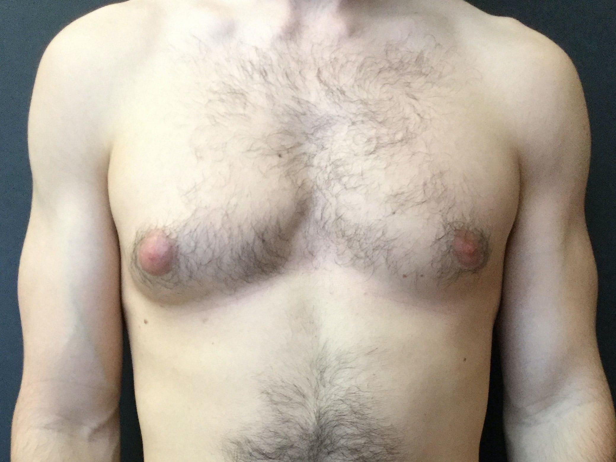 Gynecomastia Gallery - Patient 60810586 - Image 1