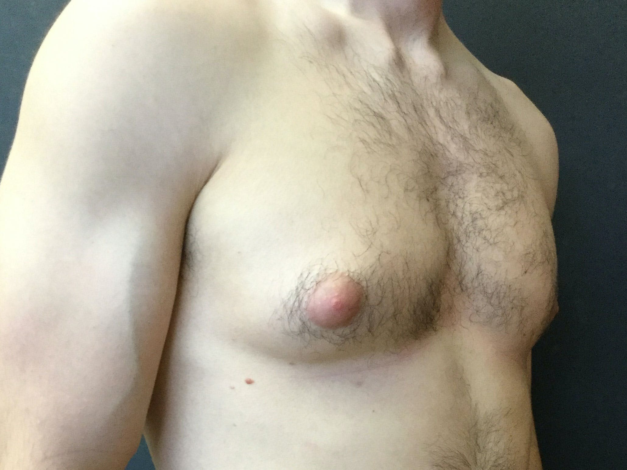 Gynecomastia Gallery - Patient 60810586 - Image 3