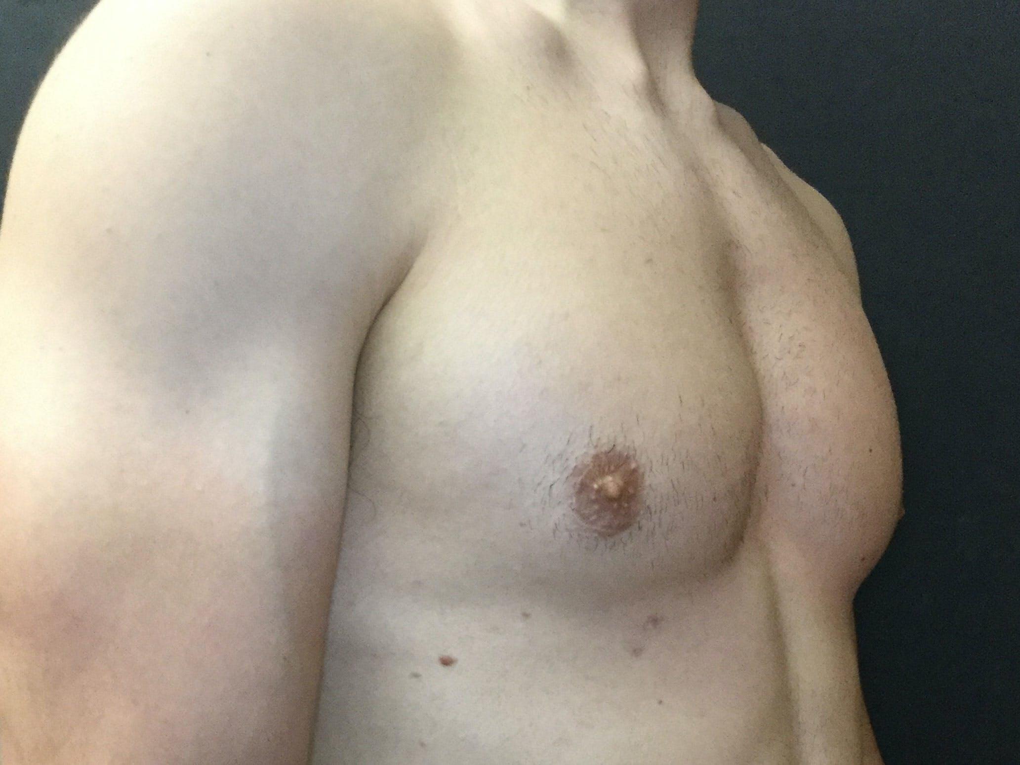 Gynecomastia Gallery - Patient 60810586 - Image 4