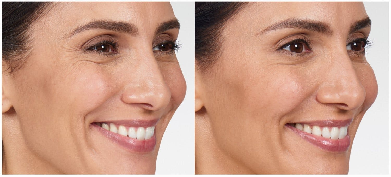 Botox & Dysport Gallery - Patient 58178941 - Image 1
