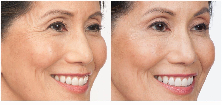 Botox & Dysport Gallery - Patient 58178942 - Image 1