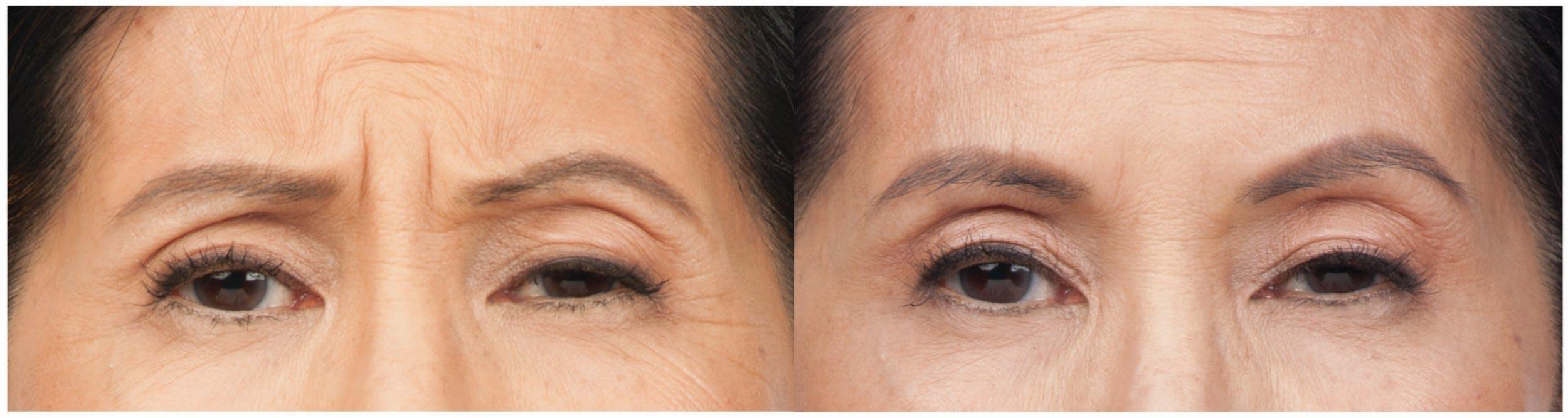 Botox & Dysport Gallery - Patient 58178942 - Image 2