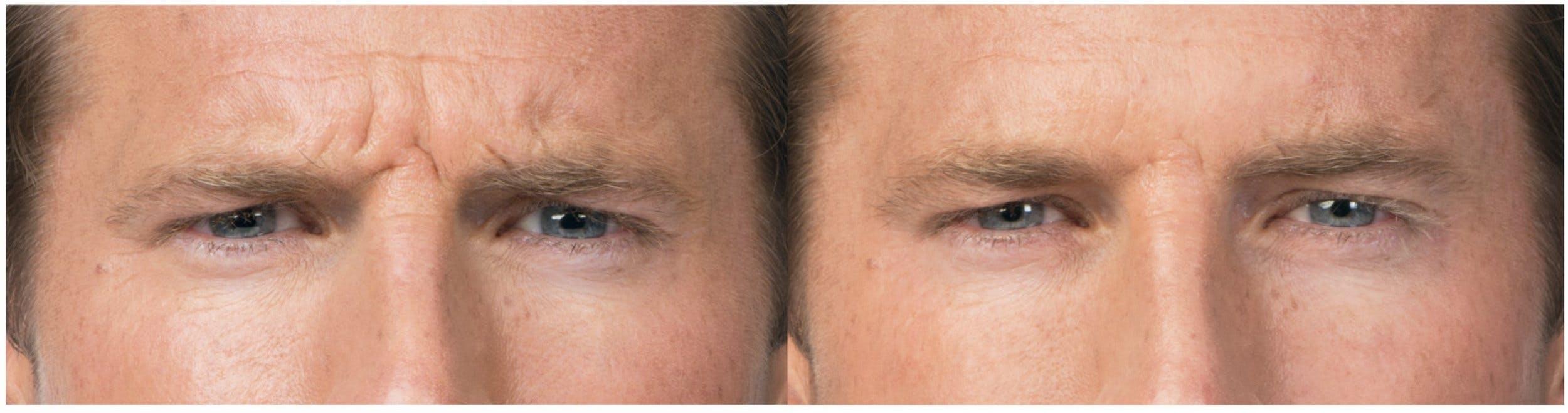 Botox & Dysport Gallery - Patient 58178943 - Image 2