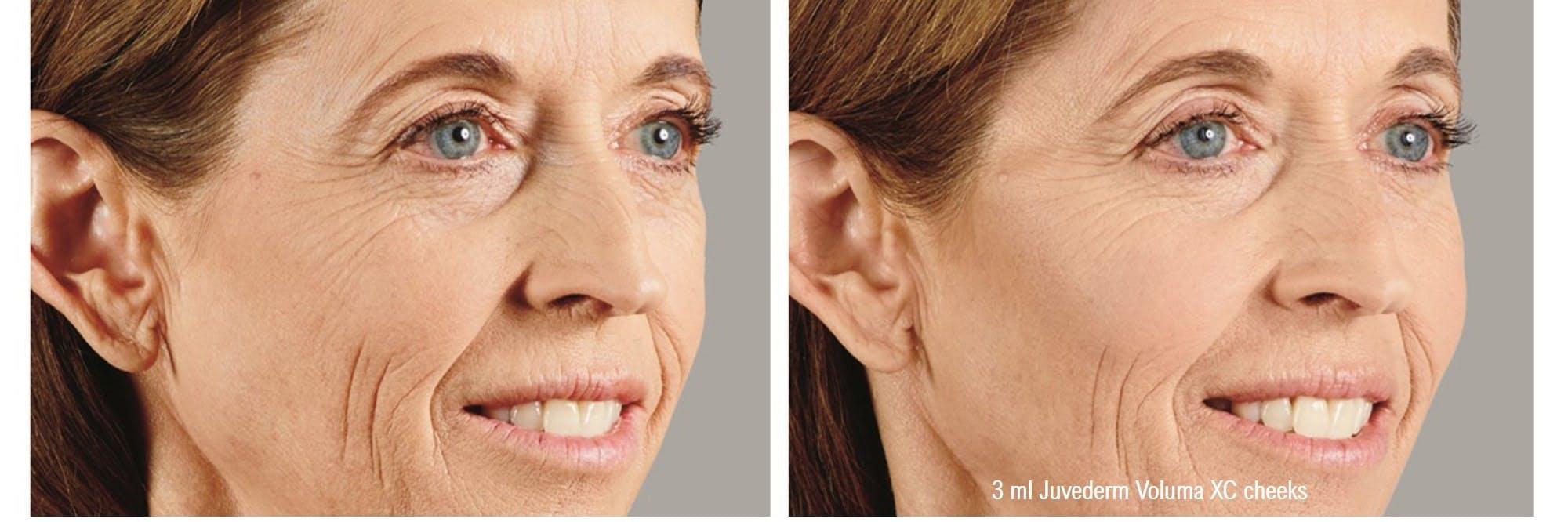 Halo Laser Resurfacing Gallery - Patient 60836722 - Image 1