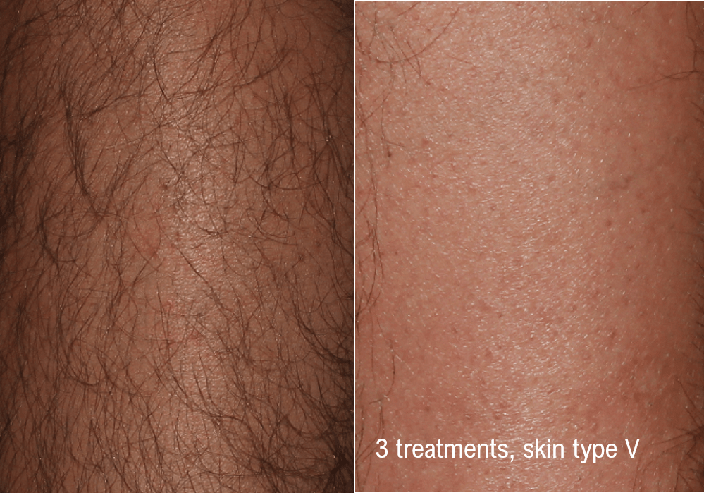 Hair Removal (Forever Bare BBL) Gallery - Patient 58179103 - Image 1