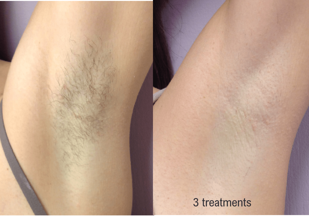Hair Removal (Forever Bare BBL) Gallery - Patient 58179105 - Image 1
