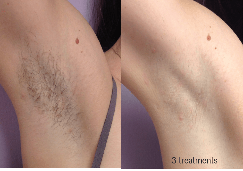 Hair Removal (Forever Bare BBL) Gallery - Patient 58179106 - Image 1
