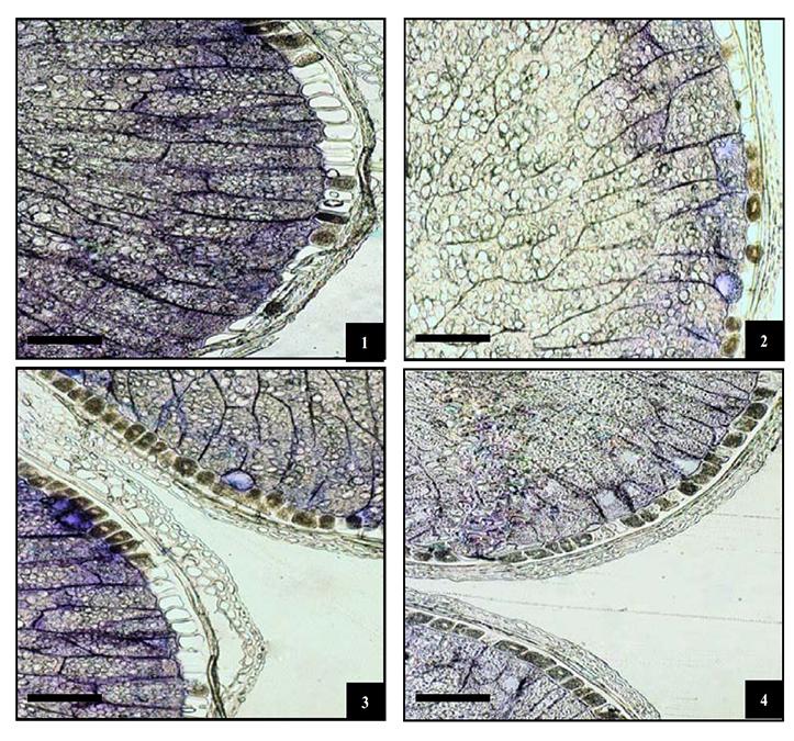 Impatto della TecnologiaGluten Friendly™ sull'Endosperma dei Chicchi di Grano e sulla Struttura delle Proteine del Glutine tramite Microscopia Ottica ed Elettronica