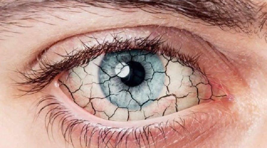 1548860349 occhio secco1