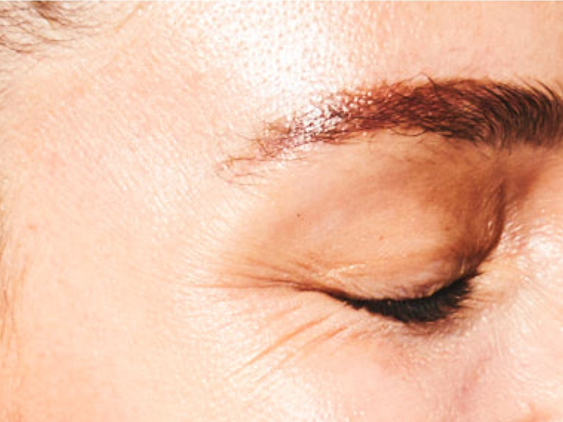 Injectable Wrinkle Reducers
