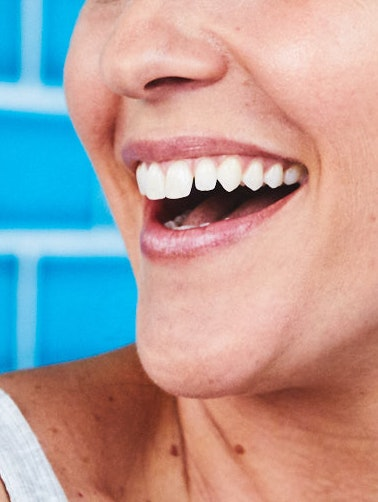 What is teeth whitening?