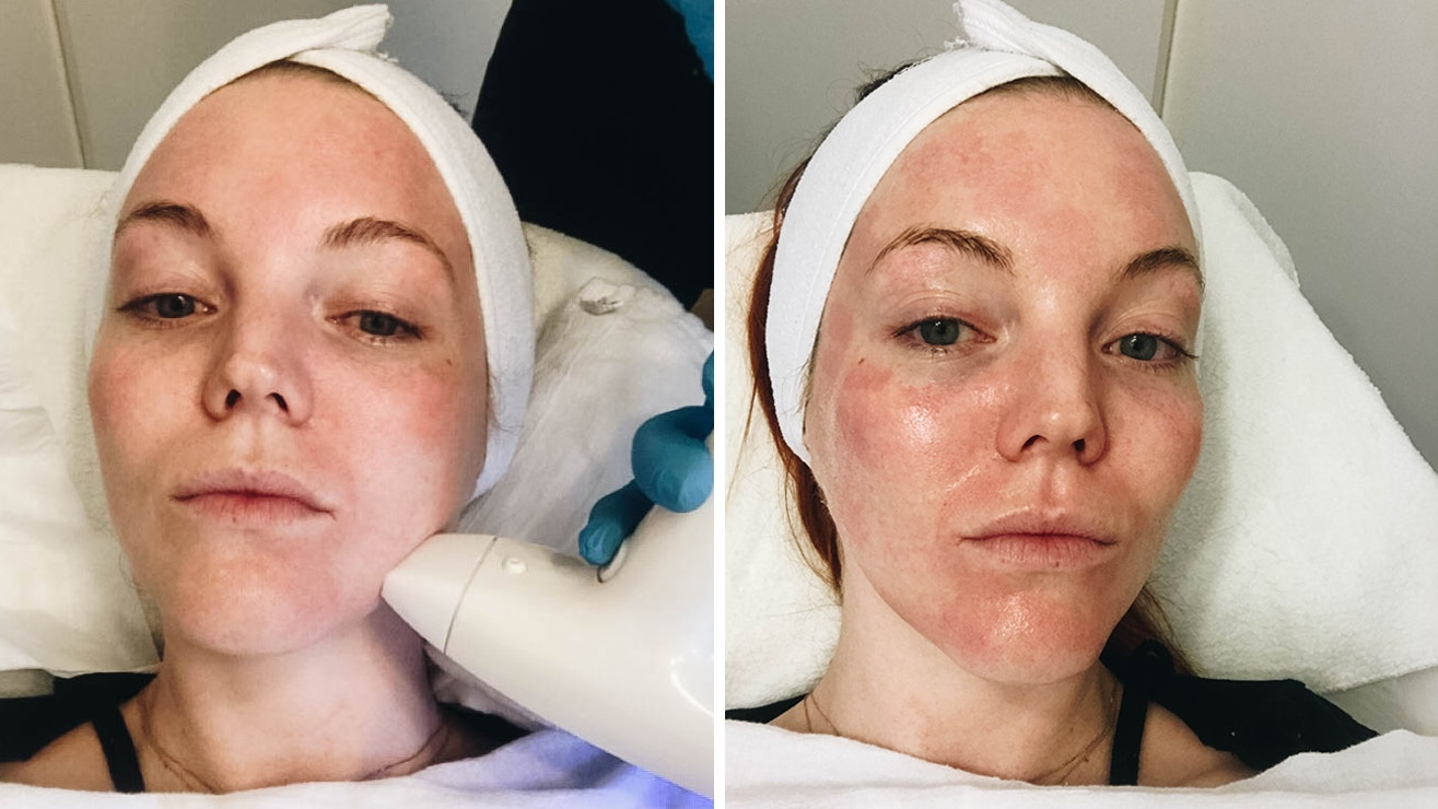 Why This Resurfacing Radiofrequency Facial Is Perfect For People Wary of Invasive Treatments