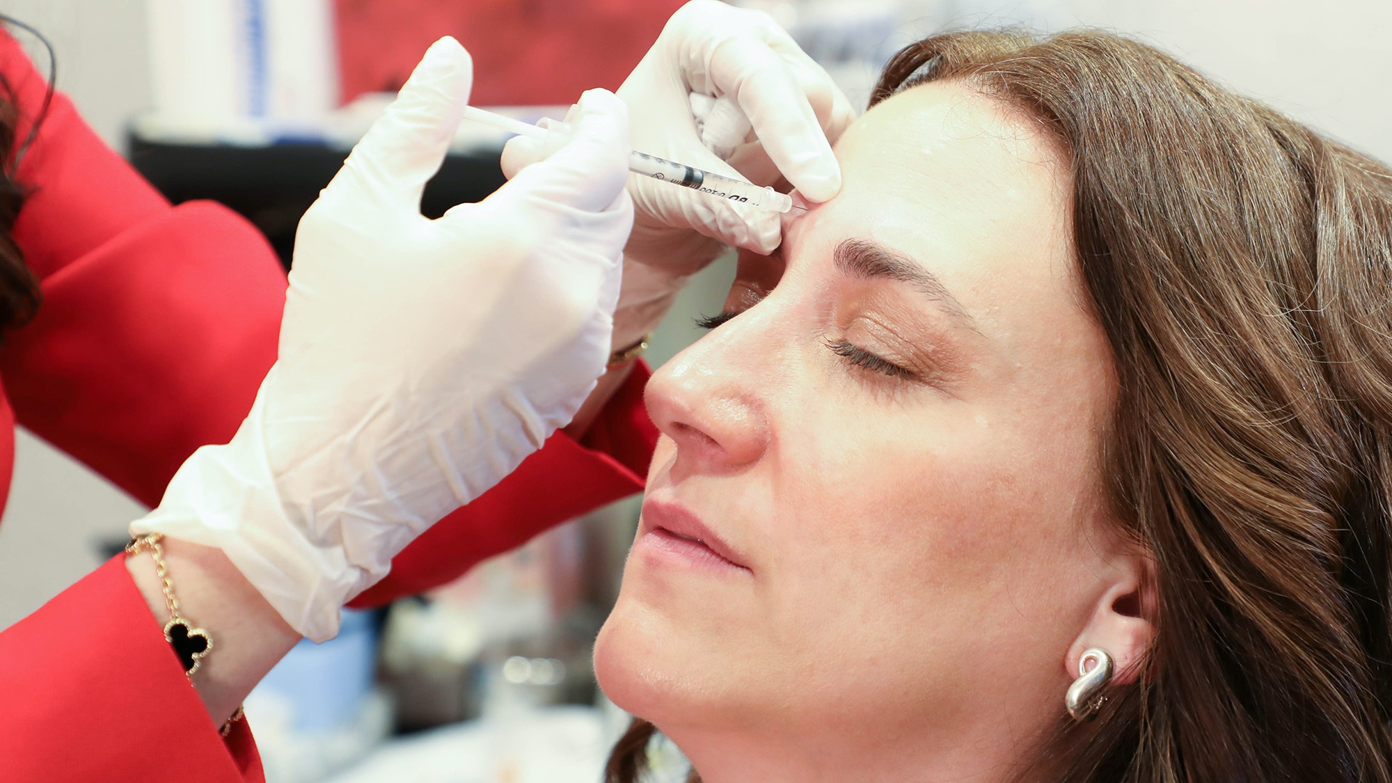 Under The Needle: One 45-Year-Old Mom Tries Injectable Wrinkle Reducers For the First Time