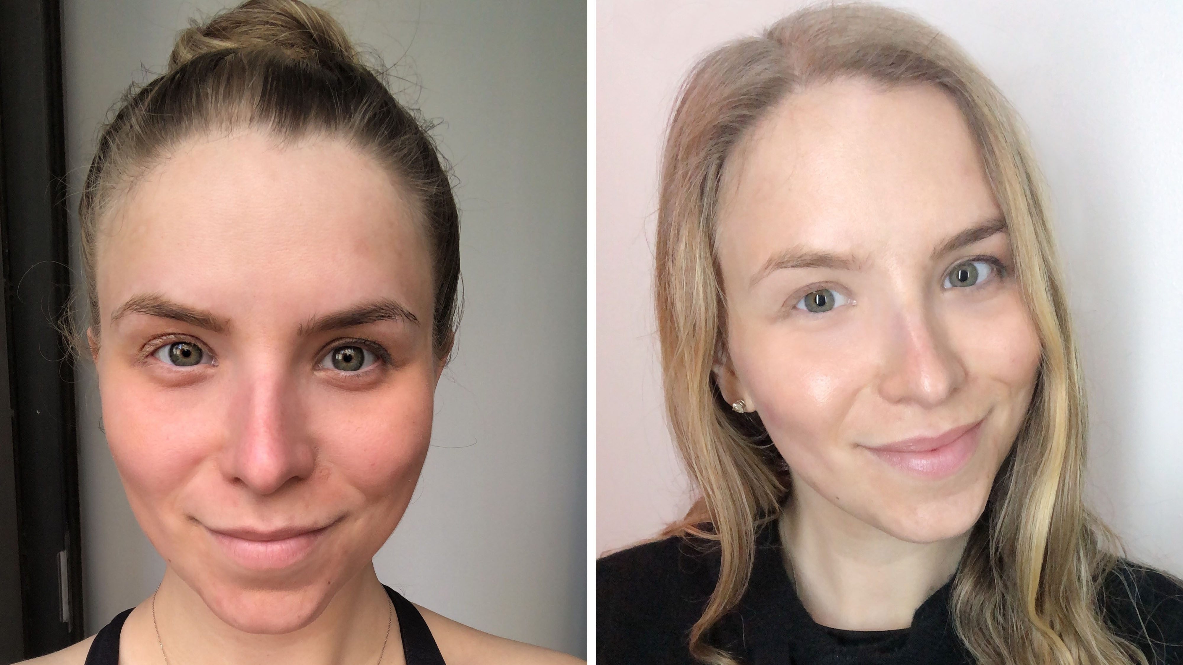 I Tried a Supermodel-Approved Laser Facial — And It Actually Cleared Up My Skin