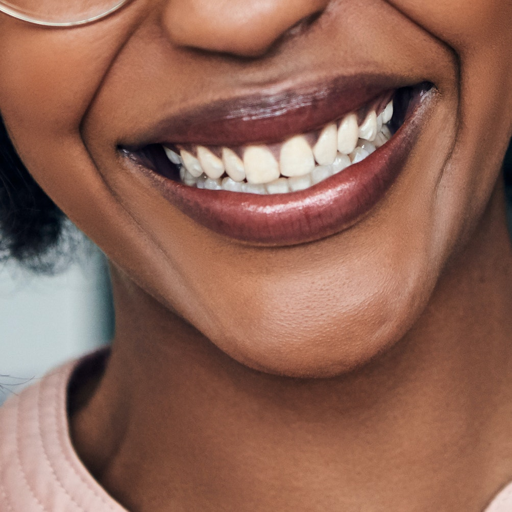 When Laugh Lines Aren't Funny: How to Treat Nasolabial Folds