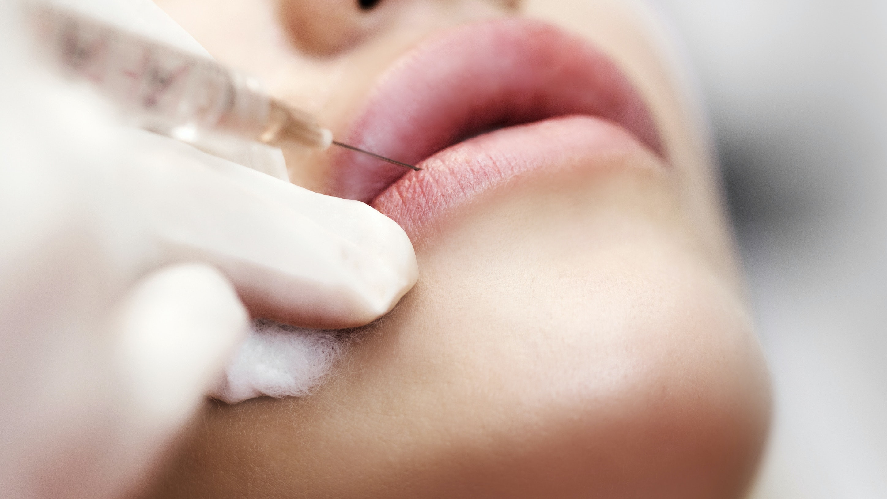 The Prescription: I'm 34, And I Spend Almost $9,000 a Year on Cosmetic Injectables