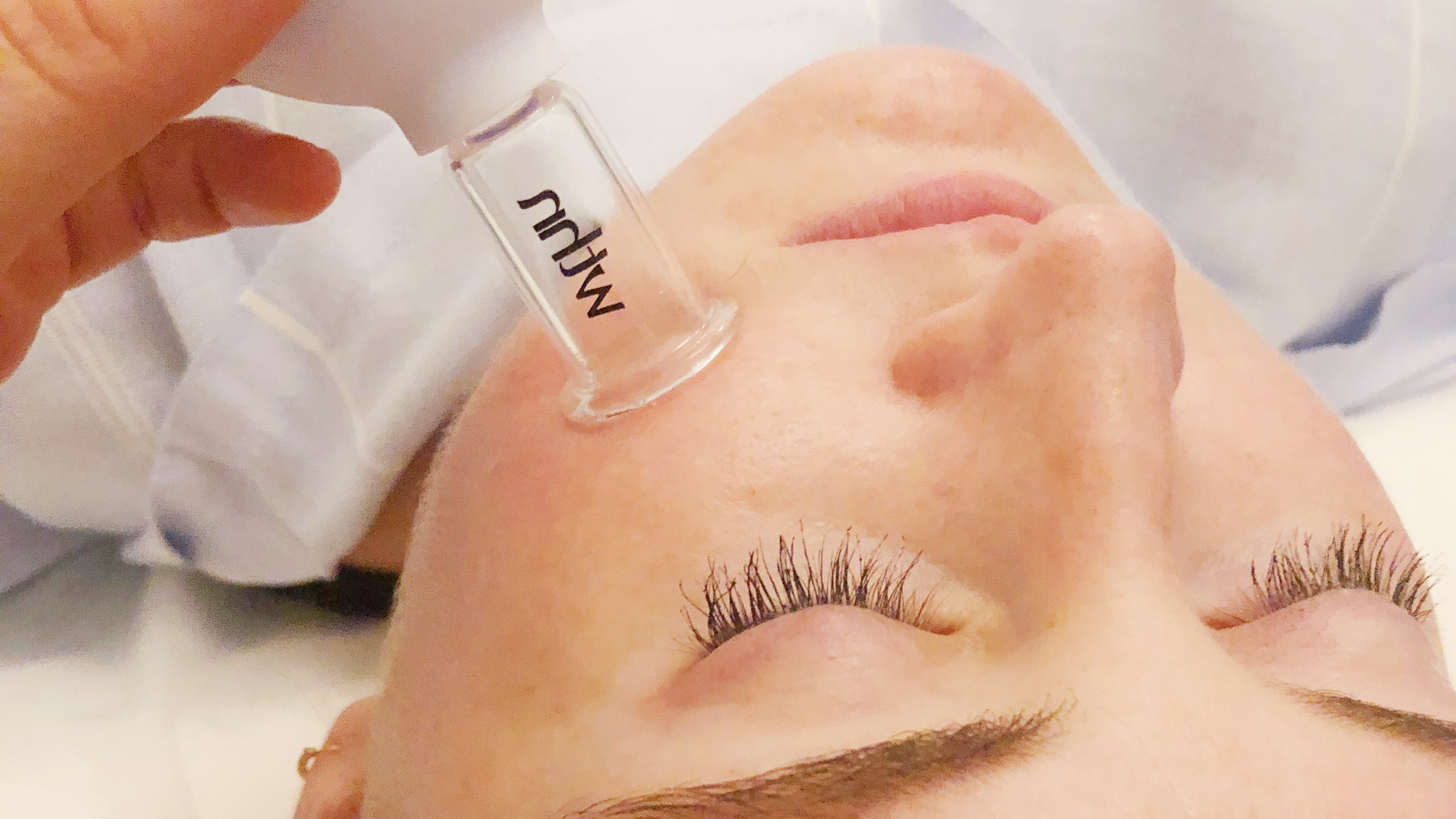 TreatMEnt of the Week: Facial Cupping