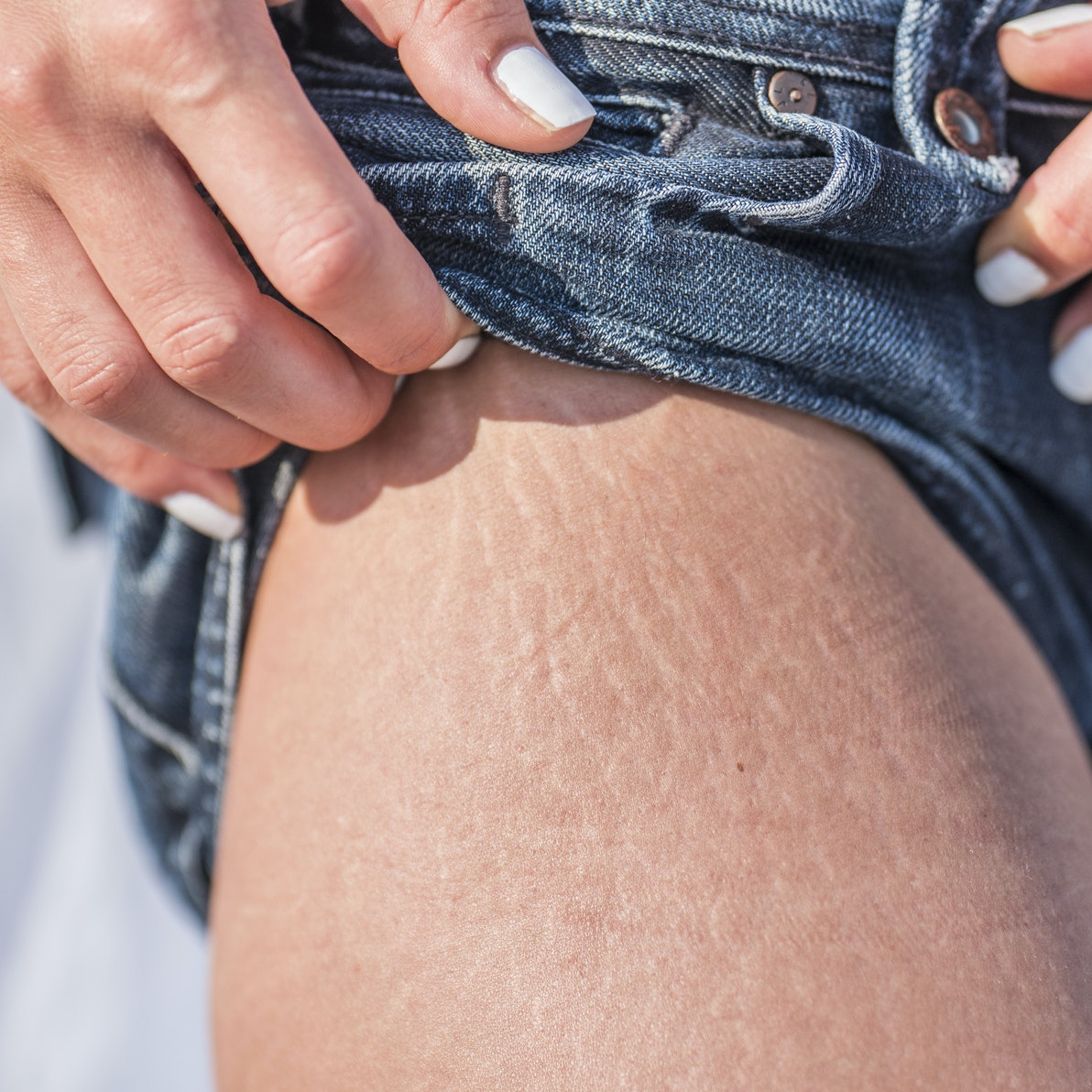 Your Non-BS Guide to Stretch Marks