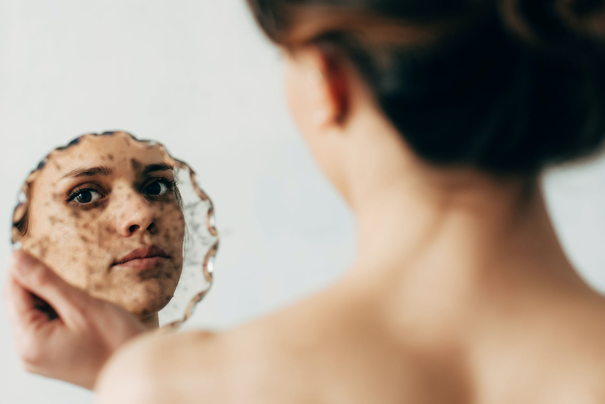 How to Safely Manage Your Cystic Acne at Home, According to a Dermatologist