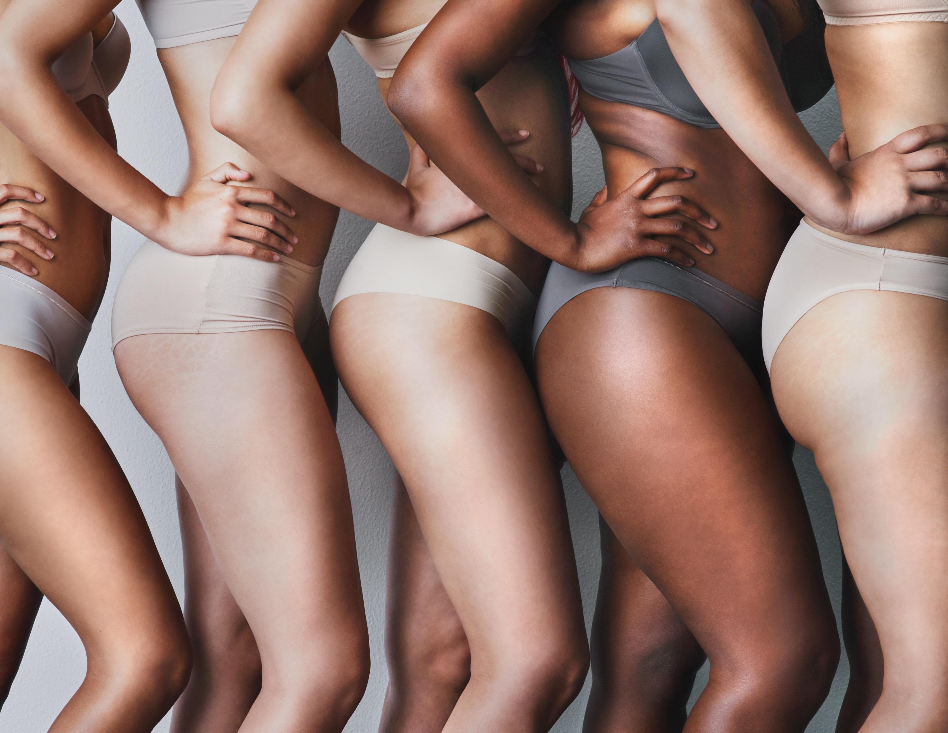 Ask a Plastic Surgeon: Can I Get Rid of My Cellulite?