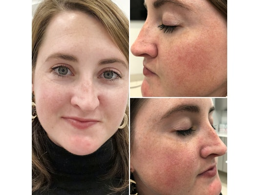 I Tried A Laser Treatment To Get Rid Of My Broken Capillaries