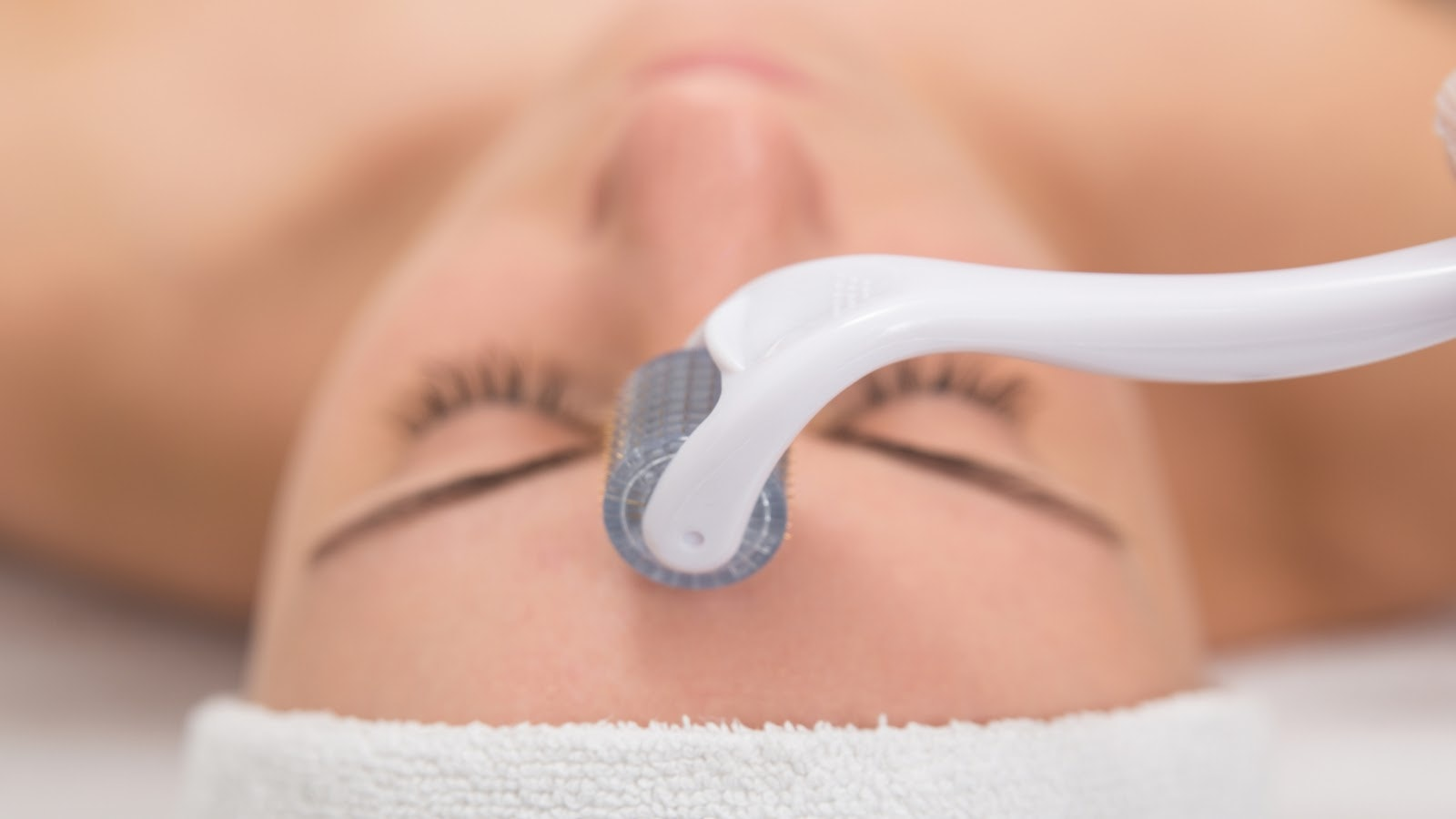 Woman receiving a microneedling treatment