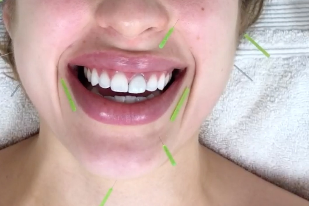I Had Needles Stuck Into My Face in the Name of Good Skin — Here's What Went Down
