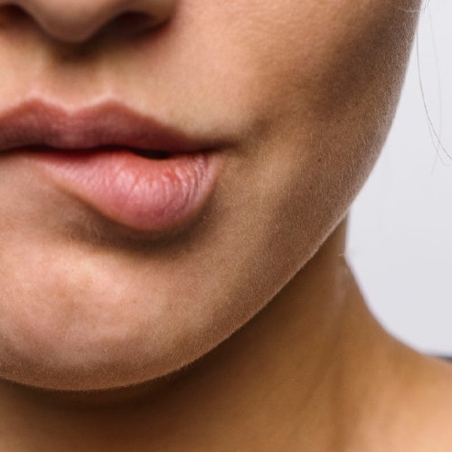 Experts Share 3 Ways to Help Reduce Swelling After an Injectable Filler Appointment