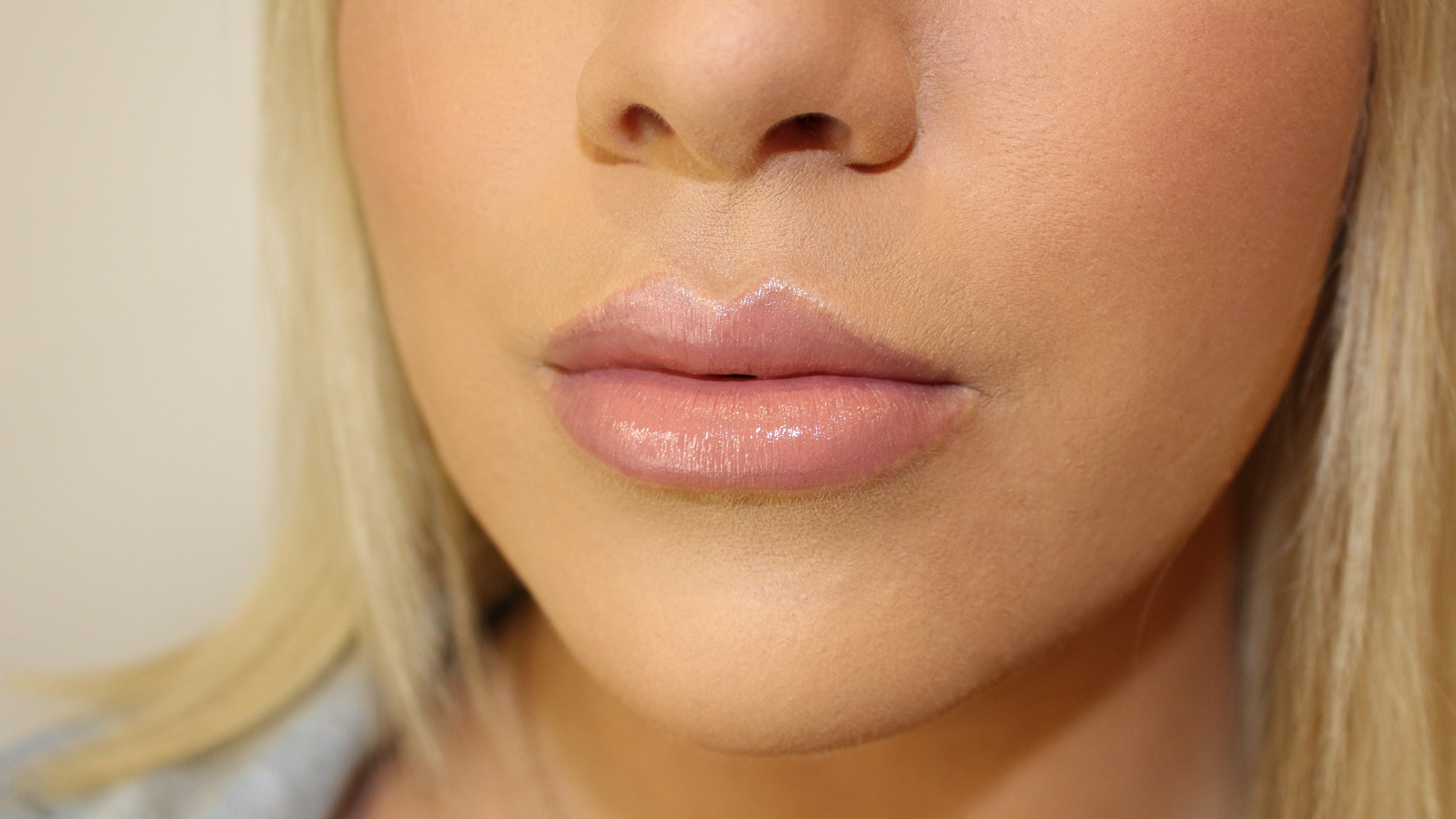 lip fillers close up