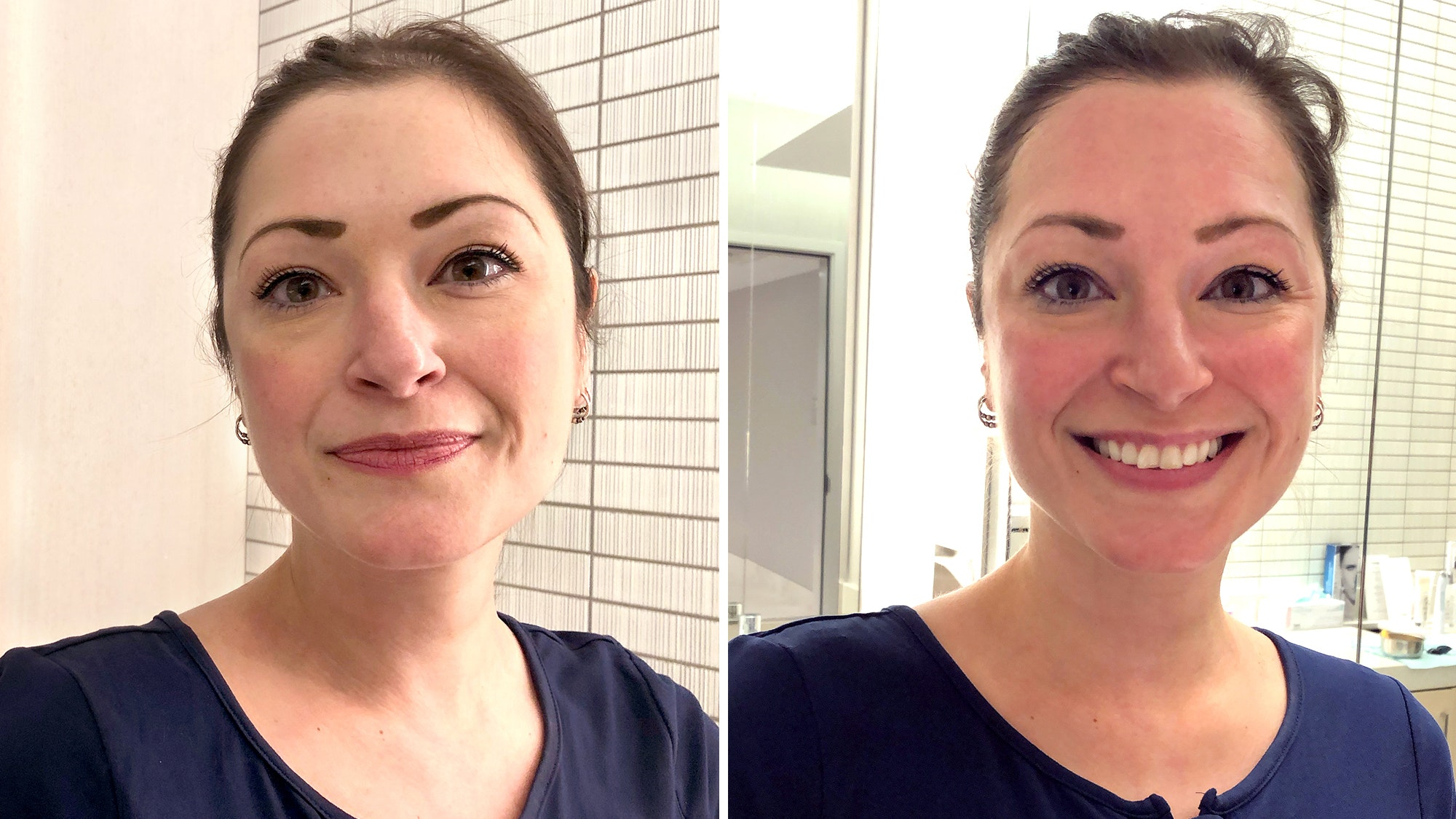 Cat Matta before and after Colbert facial