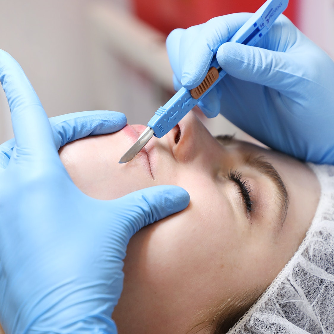 I Got Professional Dermaplaning — And It Wasn't What I Expected