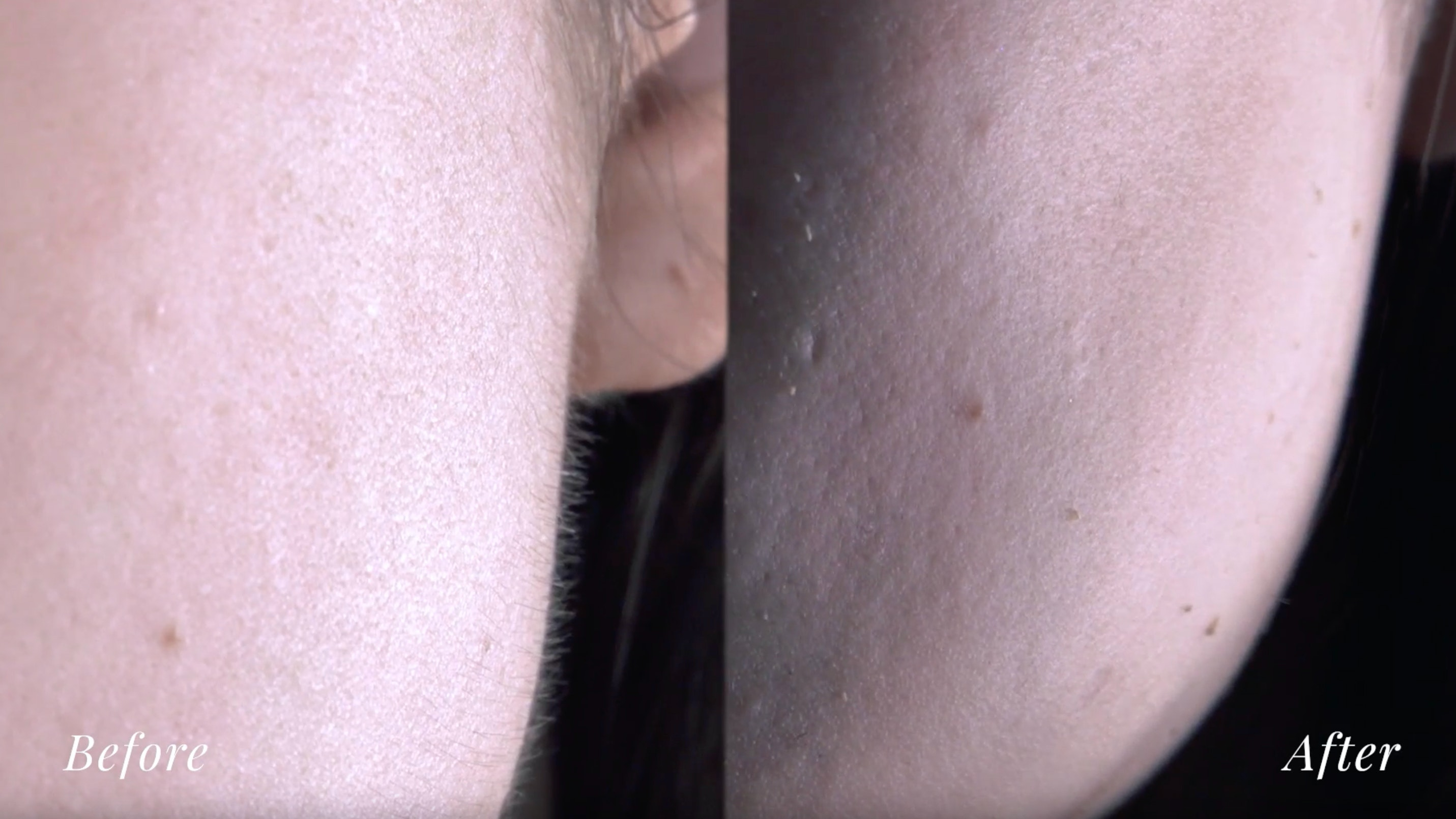 Close up after dermaplaning