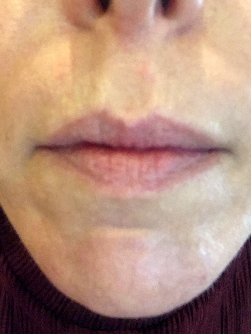 Woman's mouth before lip filler