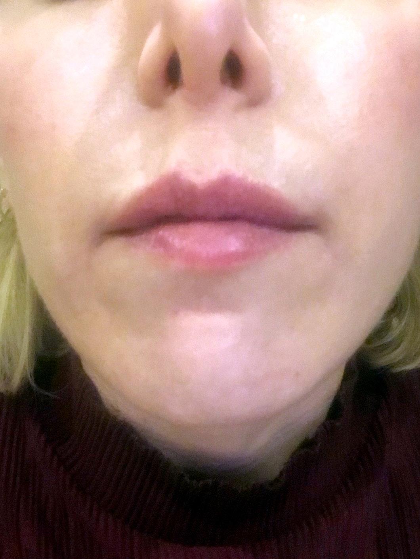 woman's lips after lip filler