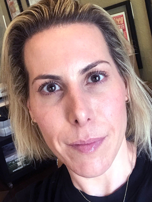 Woman's face after lip filler