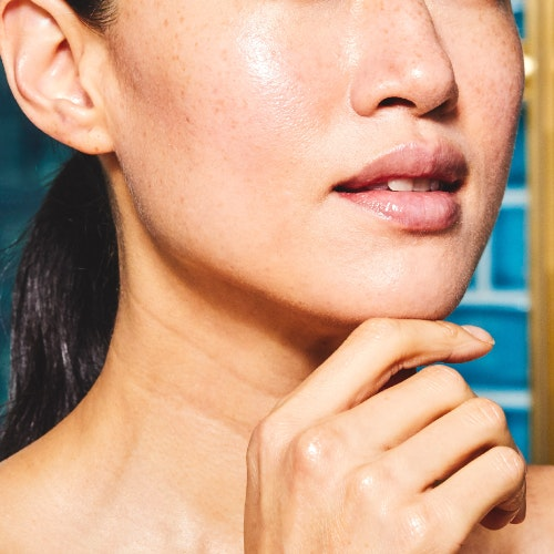 Everything You Need to Know About Injectable Fillers