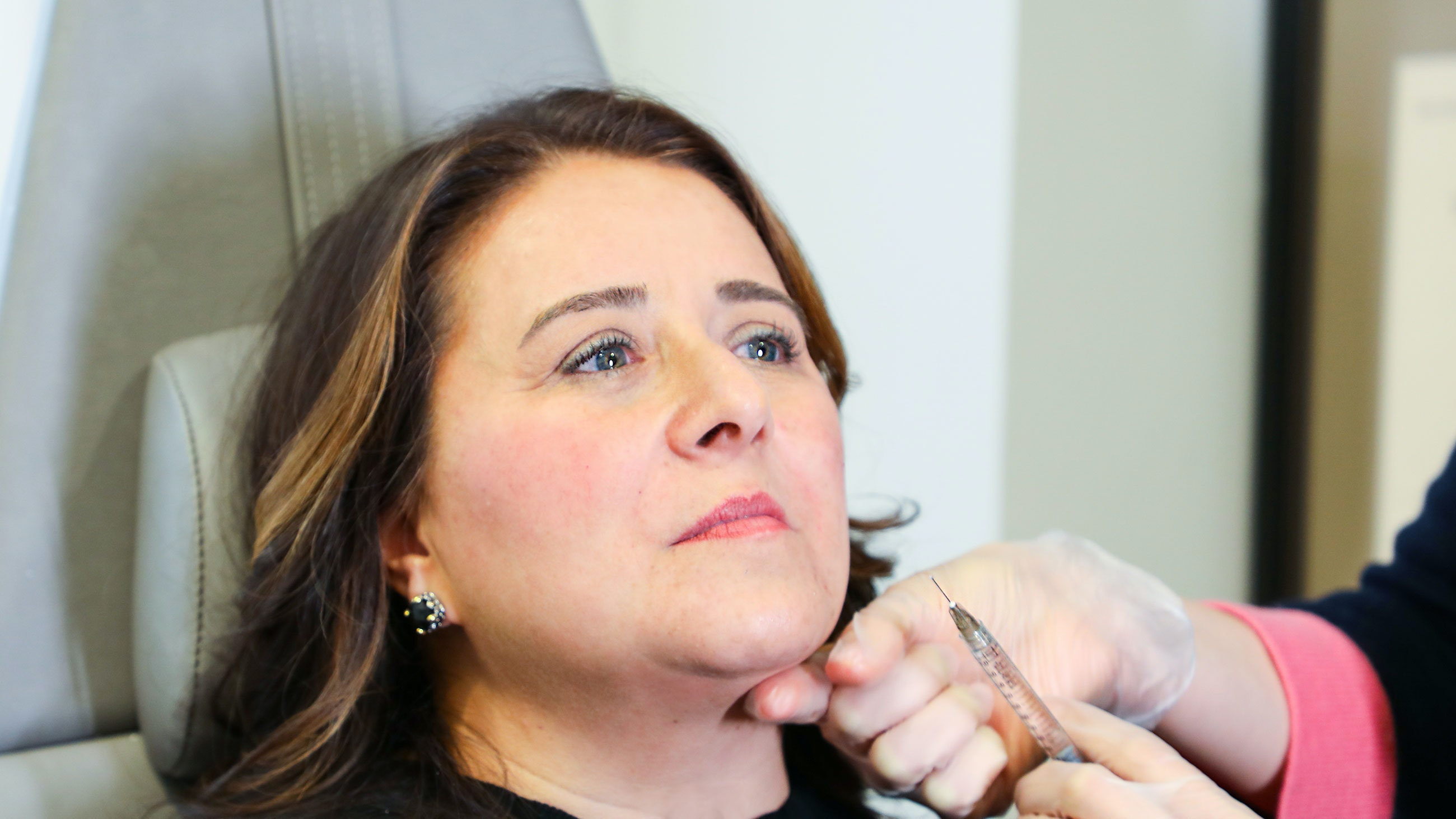 How 1 Woman Temporarily Improved the Look Of Her Crow's Feet, Forehead Lines, Elevens, and Laugh Lines With Injectables