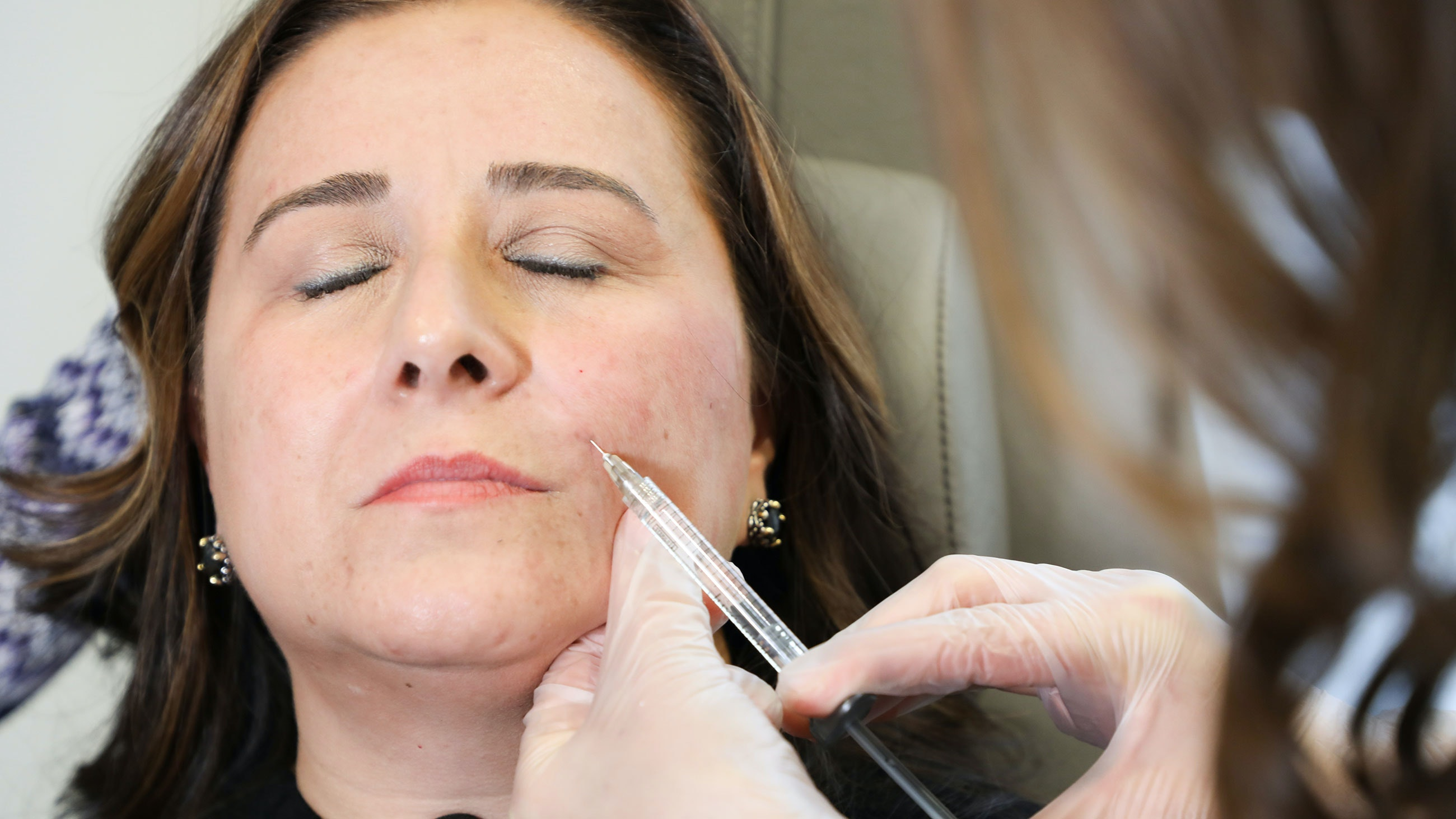 sonia getting her laugh lines injected