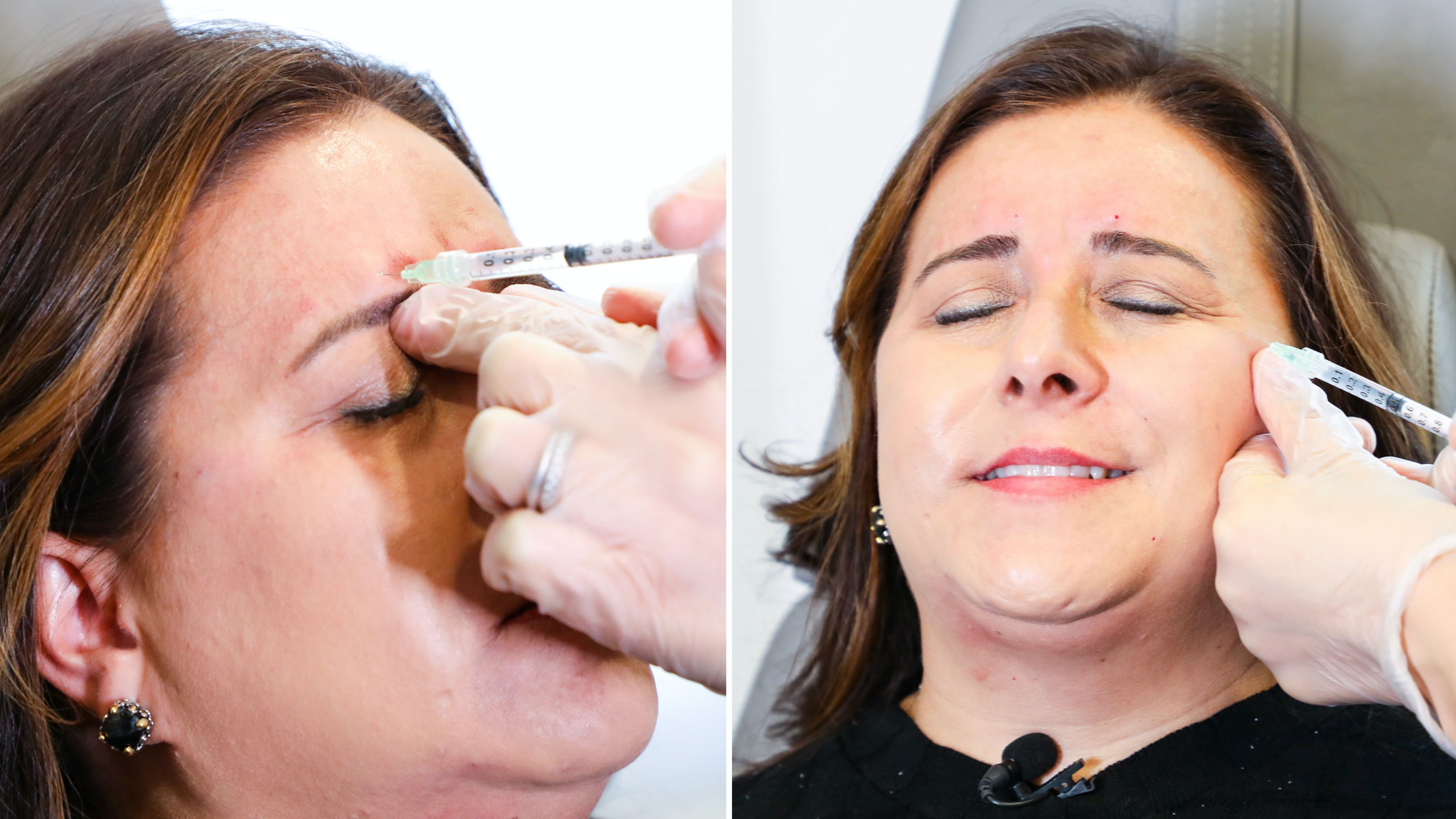 one image of sonia being injected in the forehead. another image of sonia being injected in the upper cheek