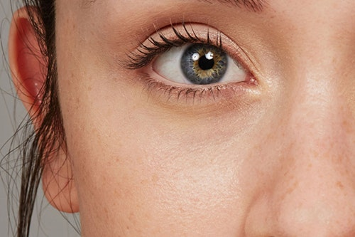 How to Address Tired-Looking Eyes, Crow's Feet, and Dark Circles