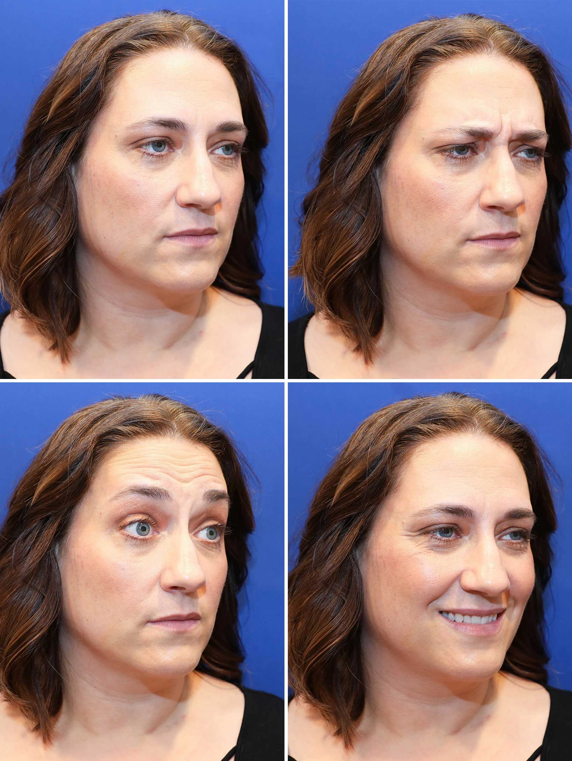 Injectable Wrinkle Reducers - Before Treatment