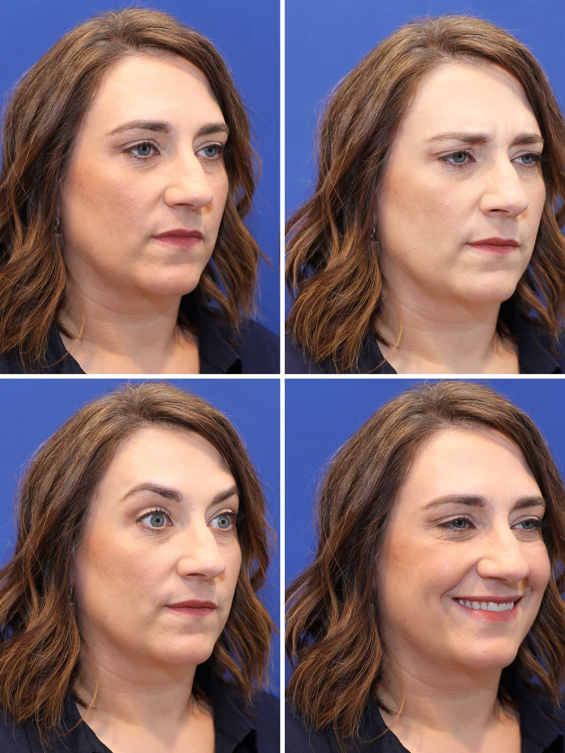 Injectable Wrinkle Reducers - After Treatment