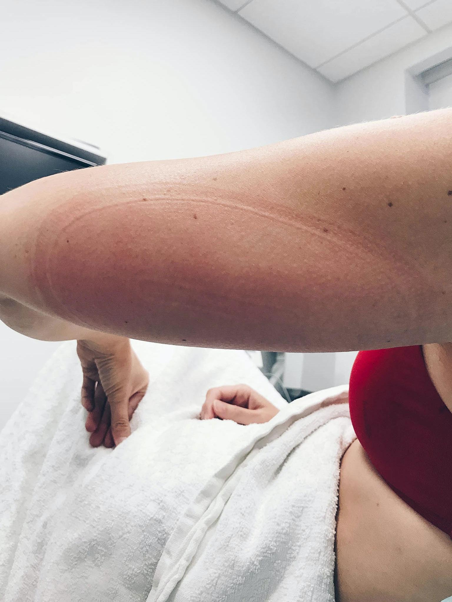 Upper arm after CoolSculpting treatment.