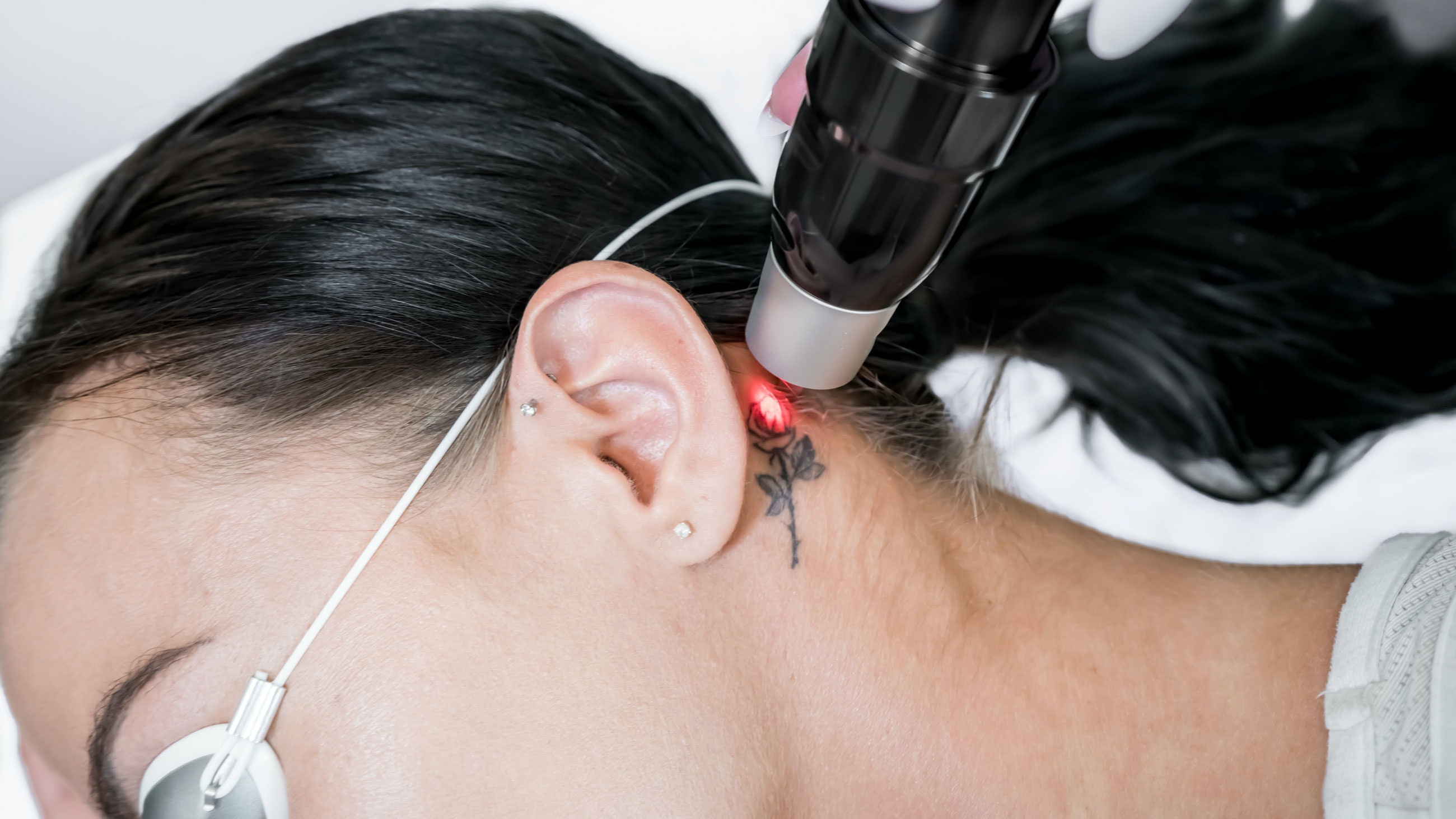 Laser tattoo removal treatment session on patient, using picosecond technology, to break down tattoo ink into smaller particles. At a beauty and skincare clinic for aesthetic lasers.