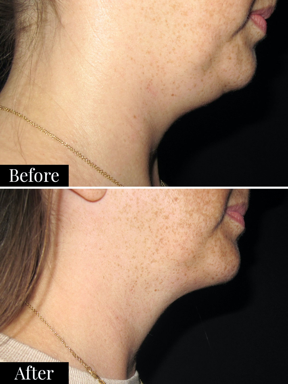double chin coolsculpting review