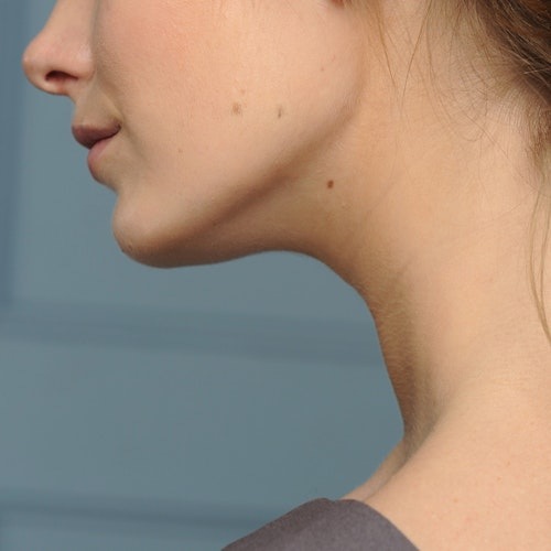 I Had a Double Chin My Whole Life — Until I Tried This Treatment