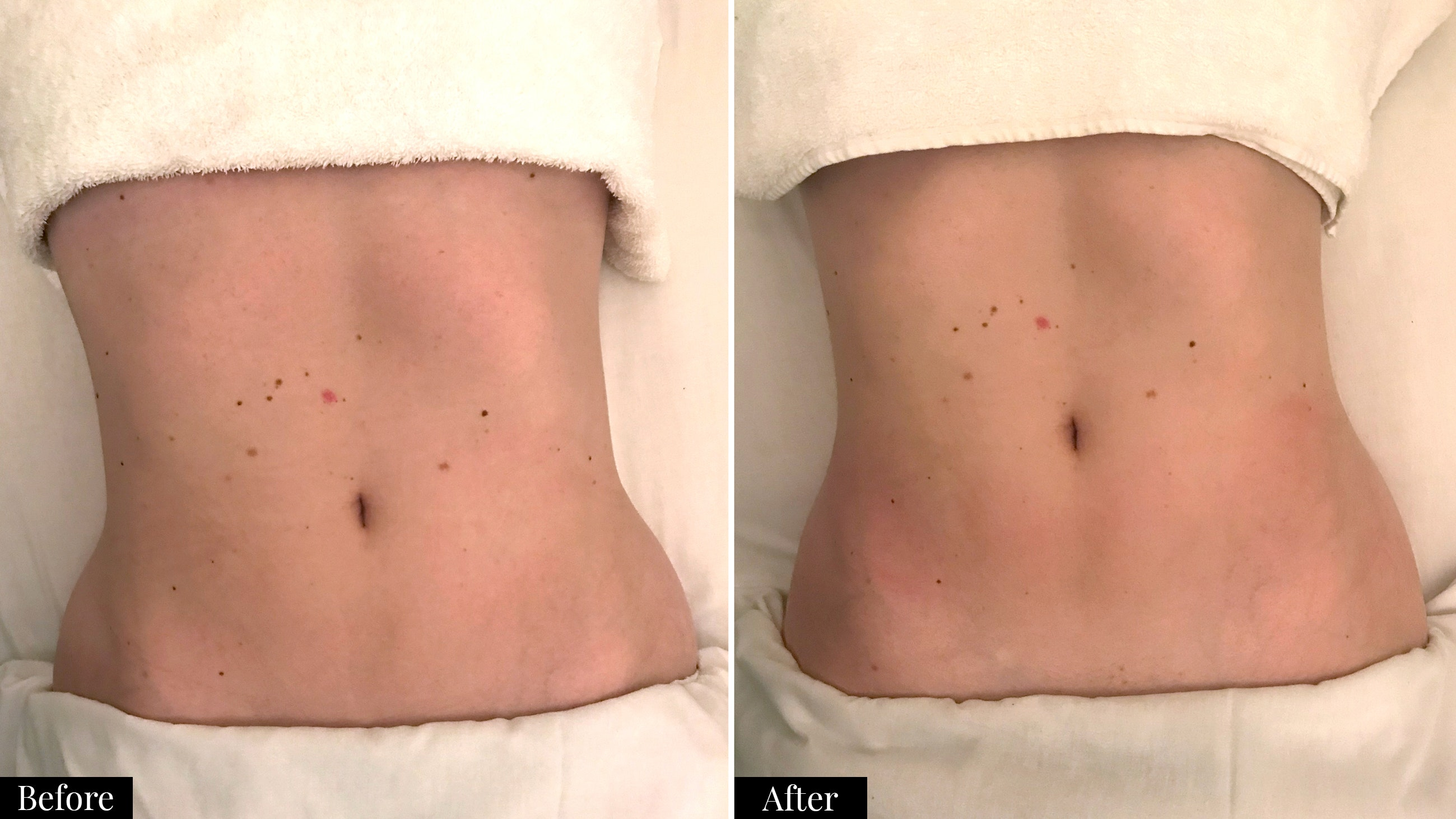 before and after Camila Perez lymphatic drainage massage