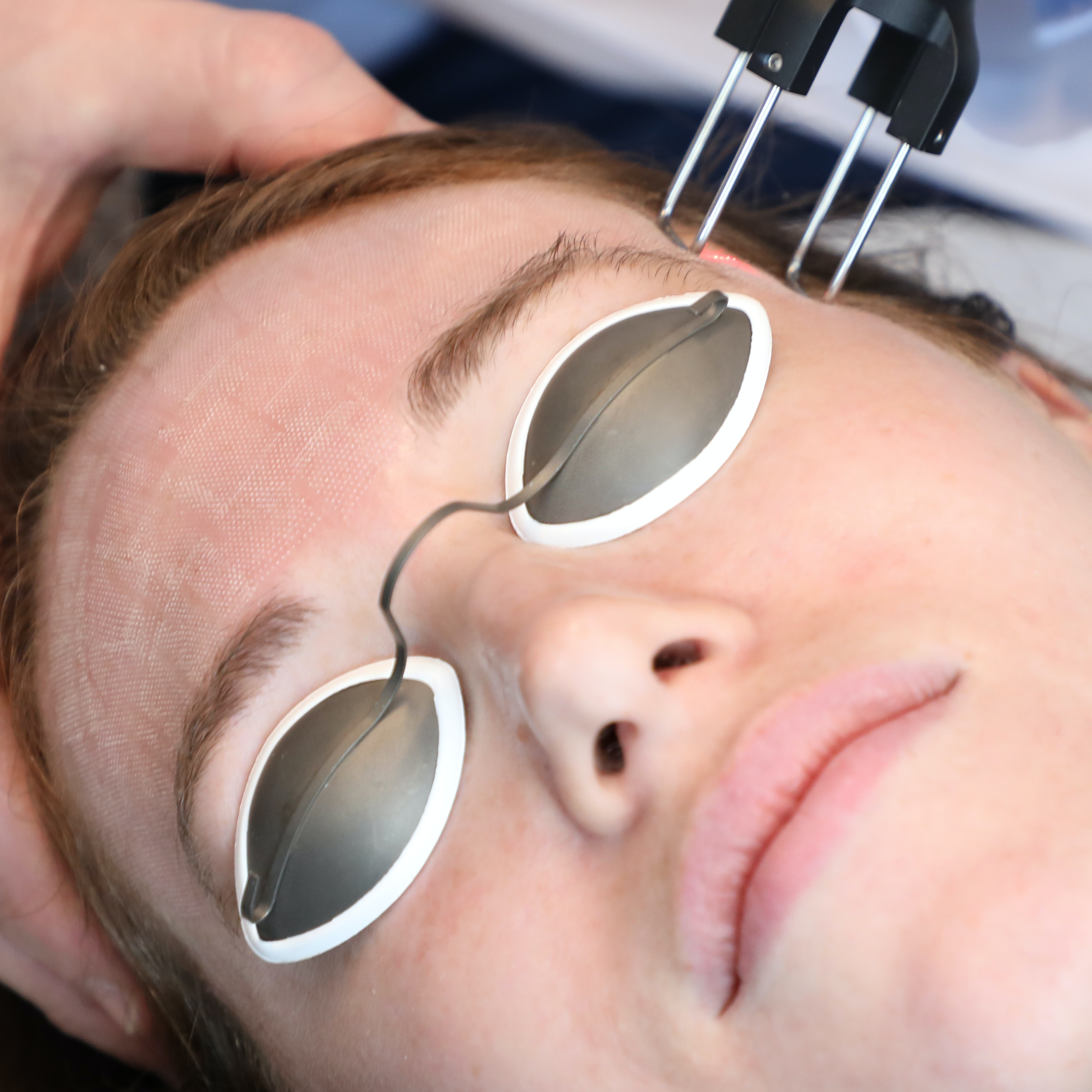 I Tried a CO₂ Fractional Laser Facial as My First Medical-Grade Skin Treatment — And It Changed My Skin