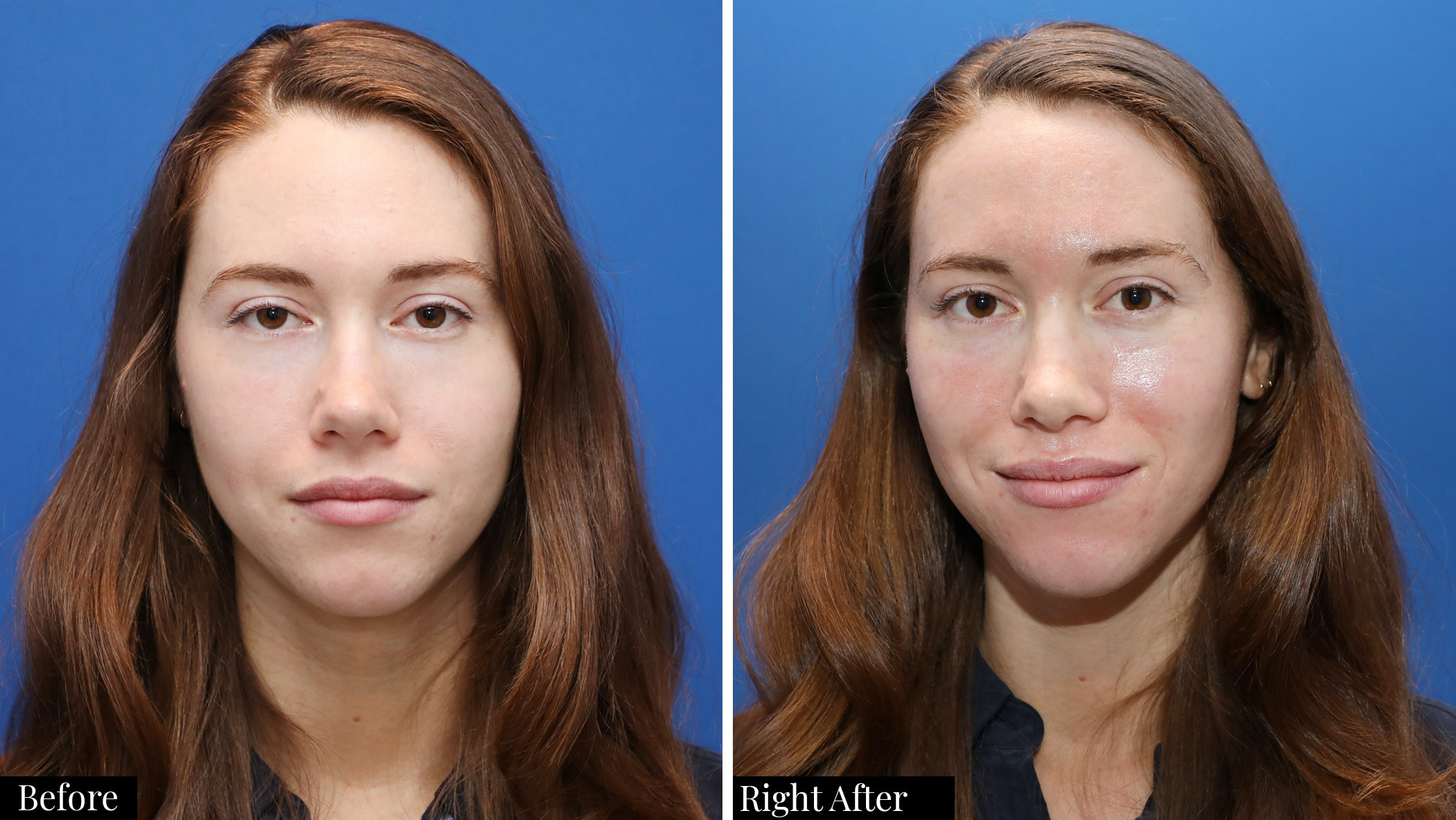 Before and After CO2 Laser